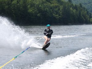 Nancy Brennan Waterskiing During Cancer Treatment